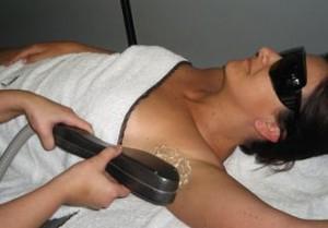 depilacja laserowa - zabieg